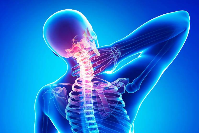 развития остеохондроза
